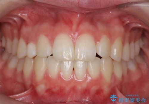 前歯のがたつき 乳歯を抜かずに矯正の症例 治療後