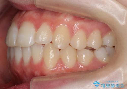 前歯のがたつき 乳歯を抜かずに矯正の治療後