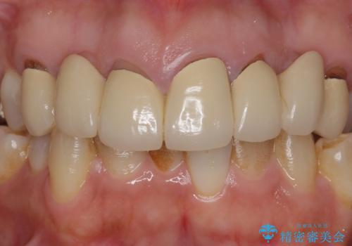 オールセラミッククラウン 前歯の被せ物を綺麗にの治療前