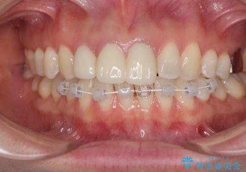 前歯の審美歯科治療 オールセラミッククラウンと部分矯正の治療中