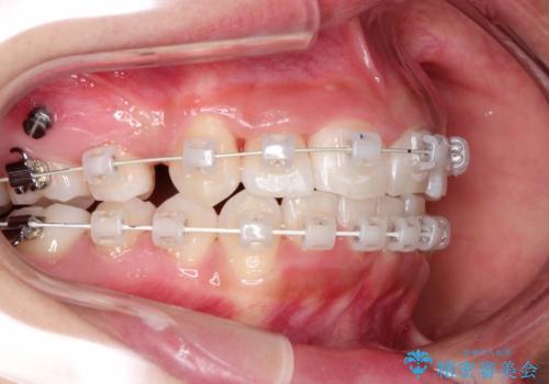 前歯のがたつき・出っ歯 ワイヤーによる抜歯矯正の治療中