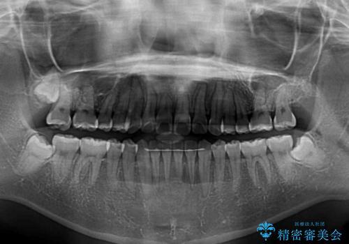 気になる前歯をインビザラインで綺麗にの治療後