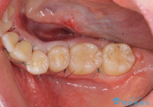 [下顎骨隆起切除] ベロのスペースが狭く話しづらいの治療中