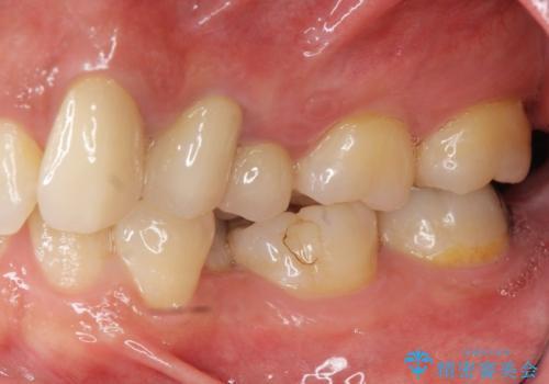 [ジルコニアクラウン治療]  笑った時に目立つ銀歯を白くしたいの症例 治療後
