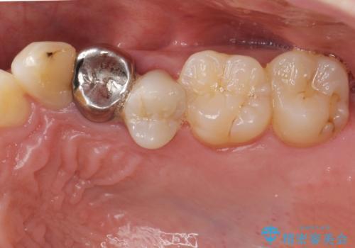 [ジルコニアクラウン治療]  笑った時に目立つ銀歯を白くしたいの治療前
