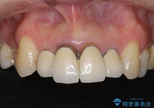 前歯の黒ずみ セラミッククラウン改善の治療前