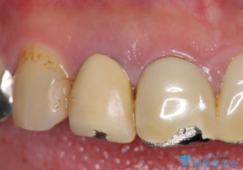 ノンクラスプデンチャー 抜歯になった歯の補綴の治療前