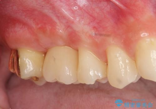 [インプラント補綴]  上顎洞底の再建に伴うサイナスフロアエレベーションの治療後