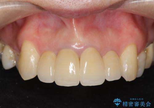 前歯の黒ずみ セラミッククラウン改善の治療後