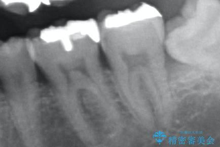[セラミック治療]  目立つ銀歯を白く②の治療前