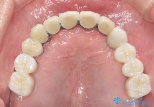 インプラントを用いた歯周病全顎治療の治療後