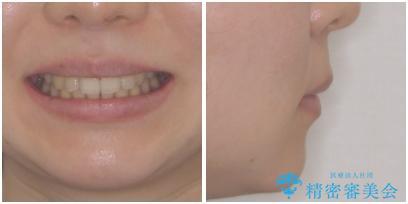 気になる八重歯を治したい ワイヤー装置での抜歯矯正の治療後(顔貌)