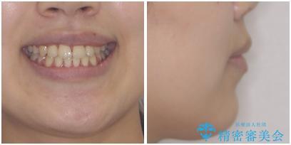 口元をスッキリと ワイヤーでの抜歯矯正の治療後(顔貌)