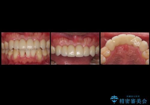 前歯ブリッジのやりかえ 下の歯のがたつき 銀歯を全てセラミックにの治療後