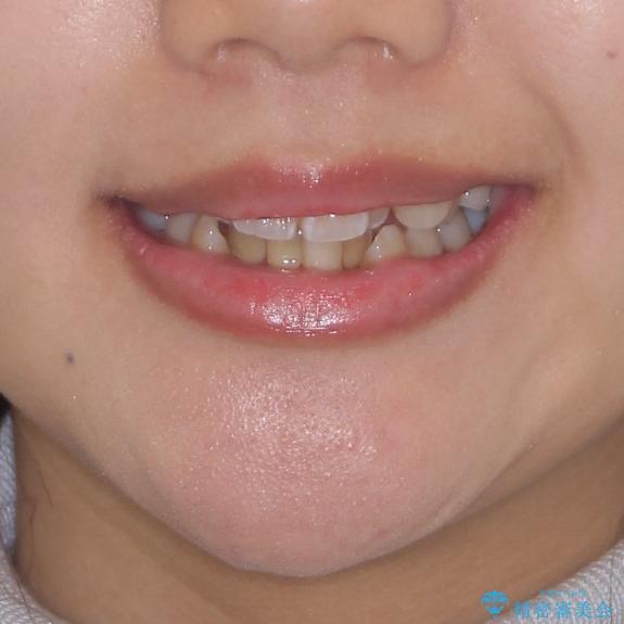 どんなに磨いても汚れが溜まる 抜歯矯正で清潔な口元にの治療前(顔貌)