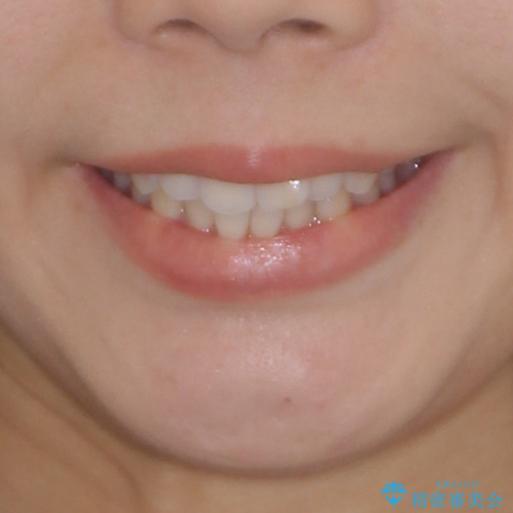 前歯のデコボコと突出感 インビザラインで改善の治療前(顔貌)