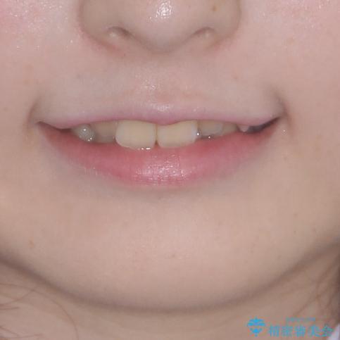 前歯をきれいに整えたい ワイヤー装置での非抜歯矯正の治療前(顔貌)