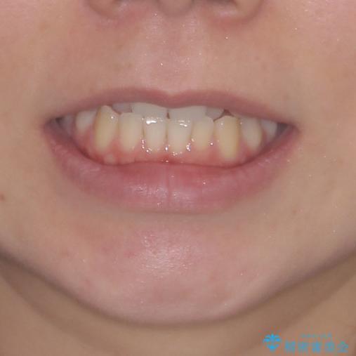 前歯のクロスバイトをインビザライン矯正で改善の治療前(顔貌)