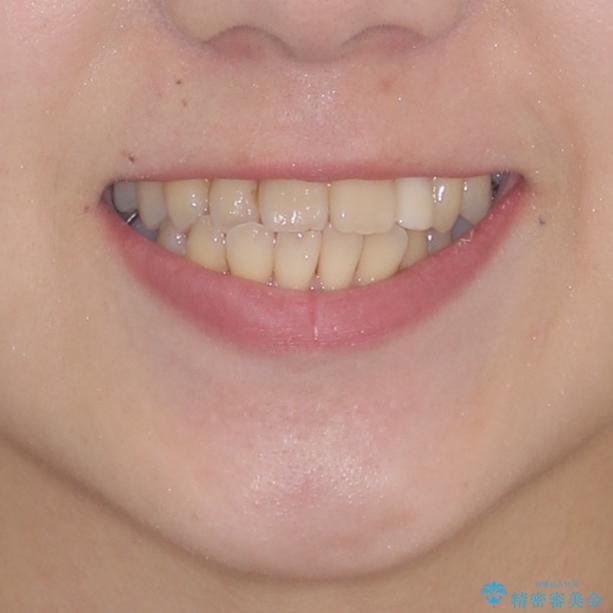 話しにくい歯並びの改善 抜歯矯正治療と前歯の審美治療の治療前(顔貌)