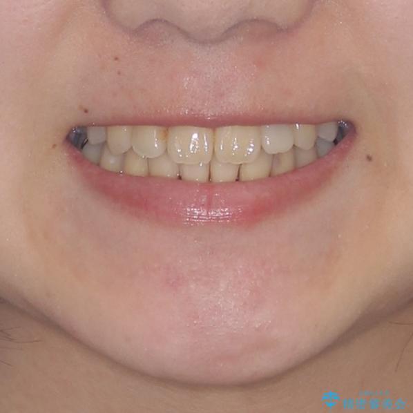 話しにくい歯並びの改善 抜歯矯正治療と前歯の審美治療の治療後(顔貌)