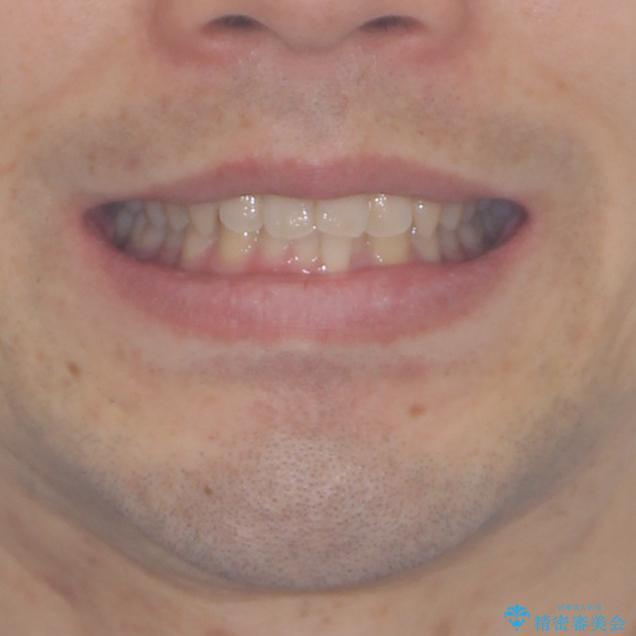 前歯の咬み合わせとデコボコを解消 インビザラインによる矯正治療の治療前(顔貌)
