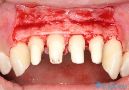 侵襲性歯周炎。前歯の歯周補綴の治療前