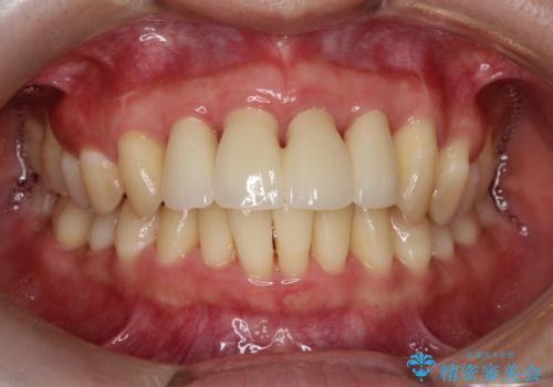 歯槽骨の再生治療の症例 治療後