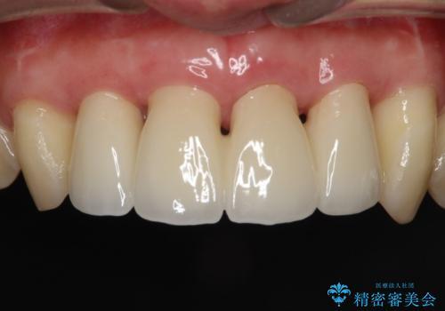 侵襲性歯周炎。前歯の歯周補綴の治療後