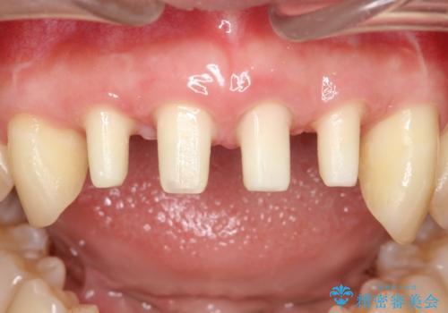 侵襲性歯周炎。前歯の歯周補綴の治療中