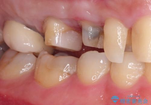 セラミッククラウン。虫歯の治療の治療中
