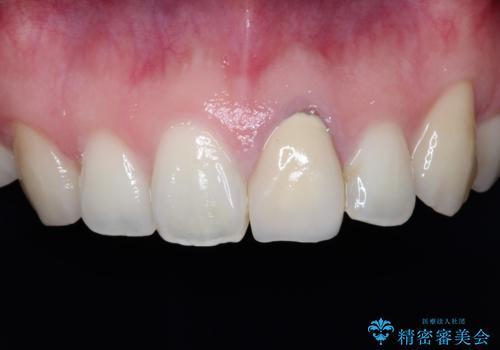 前歯が黒くなってきた。オールセラミッククラウンの治療前
