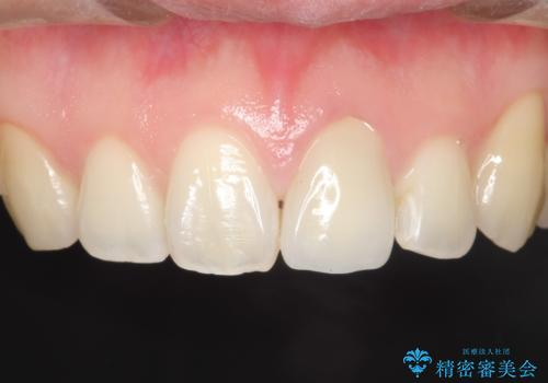 前歯が黒くなってきた。オールセラミッククラウンの治療後