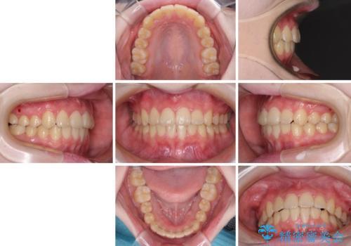前歯をきれいに整えたい ワイヤー装置での非抜歯矯正の治療後