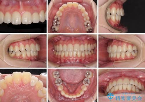 話しにくい歯並びの改善 抜歯矯正治療と前歯の審美治療の治療後