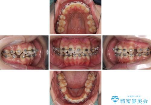 口元をスッキリと ワイヤーでの抜歯矯正の治療中