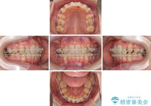 気になる八重歯を治したい ワイヤー装置での抜歯矯正の治療中