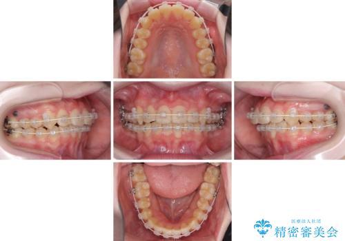 前歯をきれいに整えたい ワイヤー装置での非抜歯矯正の治療中