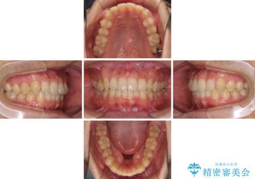 前歯の咬み合わせとデコボコを解消 インビザラインによる矯正治療の治療中
