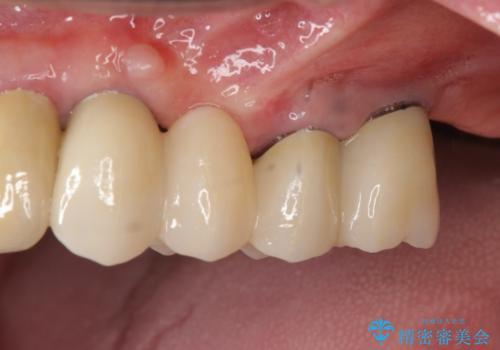 [入れ歯にしたくない] 臼歯部インプラント補綴の症例 治療後