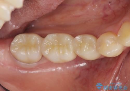 セラミックブリッジによる審美・咬合機能回復治療の治療後