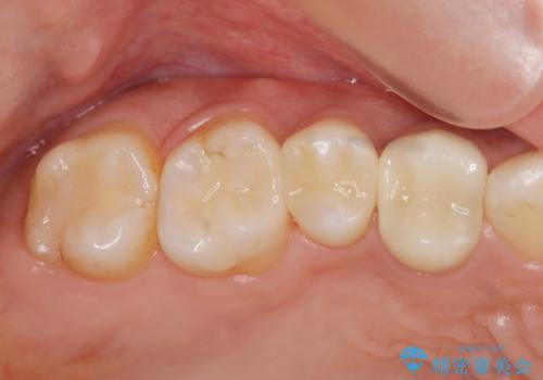 以前治療した歯が痛む 銀歯をセラミックにの症例 治療後