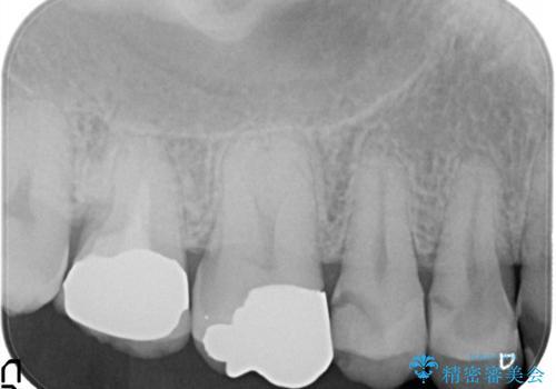 セラミッククラウン。虫歯の治療の治療前