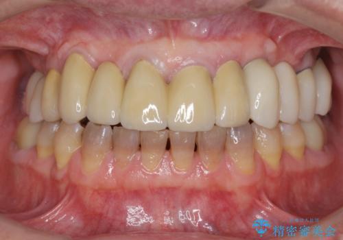 インプラントを用いた歯周病全顎治療の症例 治療後