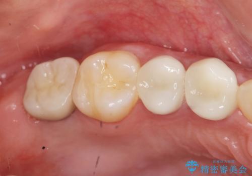 インプラントを用いた臼歯部欠損補綴の症例 治療後