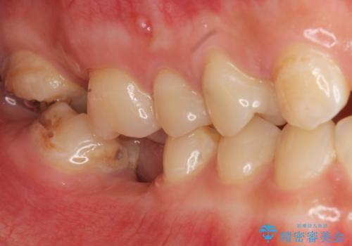 インプラントを用いた臼歯部欠損補綴の治療前