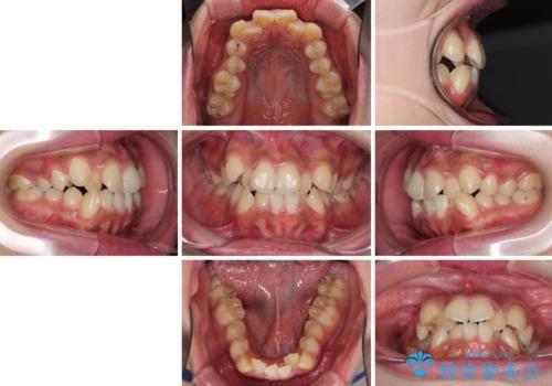 口元をスッキリと ワイヤーでの抜歯矯正の治療前