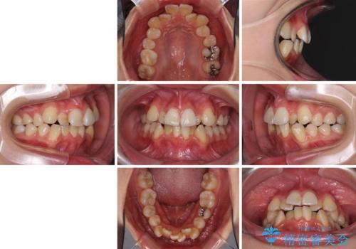 どんなに磨いても汚れが溜まる 抜歯矯正で清潔な口元にの治療前
