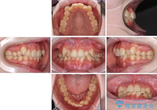 前歯をきれいに整えたい ワイヤー装置での非抜歯矯正の治療前