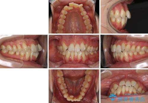 前歯のデコボコを治したい 費用を抑えた抜歯矯正の治療前