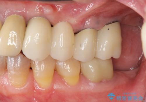 [入れ歯にしたくない] 臼歯部インプラント補綴の治療後